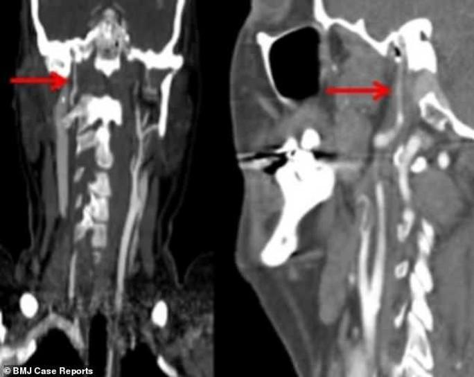 Một phụ nữ bị sóng biển đánh... vỡ động mạch cổ - Ảnh 1.