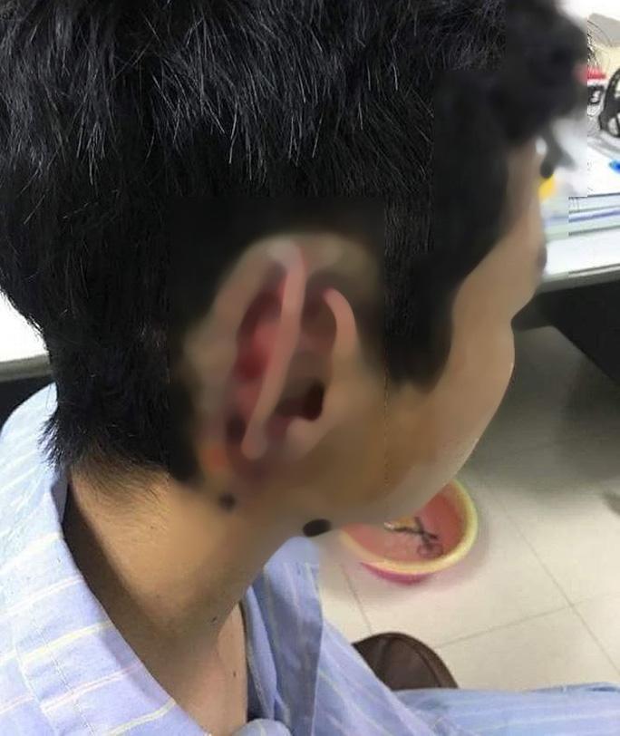 Bất ngờ bị bạn học cùng trường cắn đứt vành tai nuốt vào bụng - Ảnh 1.