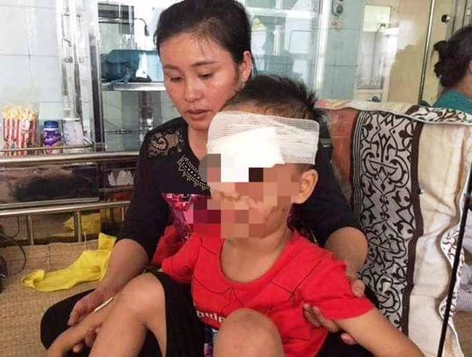 Chó nhà bất ngờ cắn nát vùng mặt bé trai 6 tuổi - Ảnh 1.