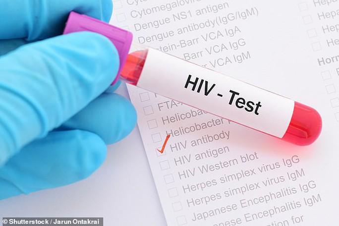 Phát hiện cơ chế giúp chữa khỏi HIV ngay trong não người - Ảnh 1.