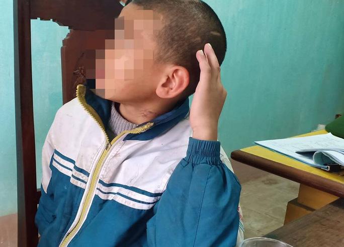 Bé trai 10 tuổi bị sư thầy bạo hành thâm tím khắp người - Ảnh 2.