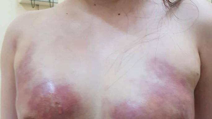 Cô gái trẻ bị hoại tử ngực vì bơm mỡ nhân tạo ở Spa - Ảnh 1.