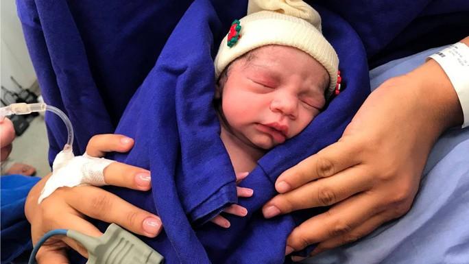 Cận cảnh em bé đầu tiên ra đời từ… tử cung người chết - Ảnh 1.