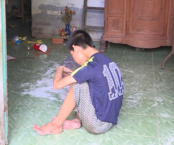 Tội nghiệp bé trai khuyết tật bị nhốt trong nhà, không được chăm sóc - Ảnh 1.