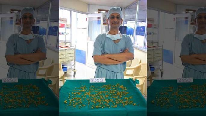 Hy hữu: Bác sĩ gắp 2.350 viên sỏi mật trong cơ thể 1 phụ nữ - Ảnh 1.