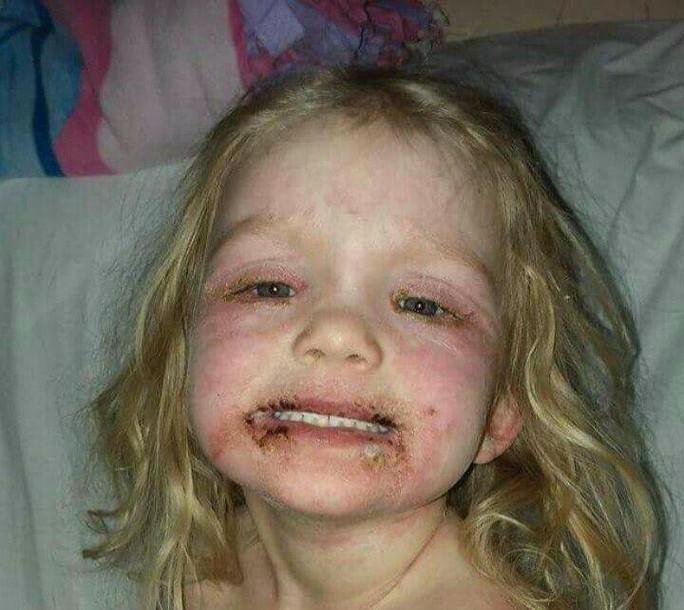 Bé gái biến dạng mặt, nhập viện sau trò chơi trang điểm - Ảnh 1.