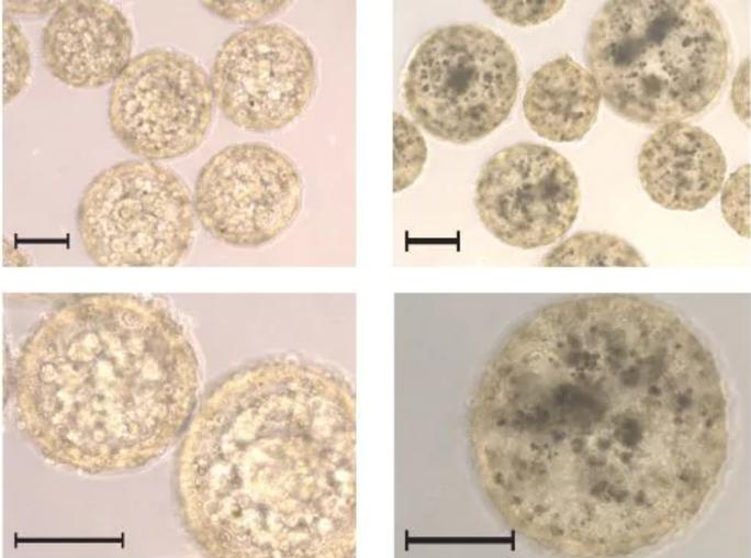 Nốt ruồi đặc biệt báo hiệu bệnh ung thư - Ảnh 2.