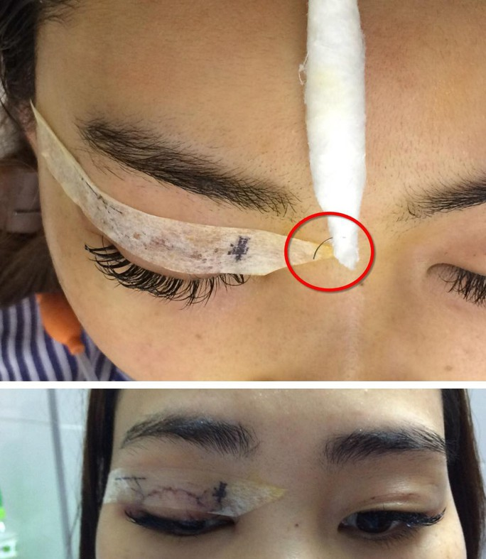 Cô gái bị kim khâu chui vào mắt trong lúc nhấn mí - Ảnh 1.