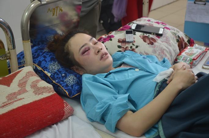 Nam thanh niên đánh phụ nữ bầm mắt vì dĩa bánh xèo - Ảnh 1.