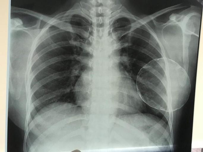 Nâng ngực bị vôi hóa, nữ Việt kiều đau đớn cầu cứu bác sĩ - Ảnh 1.