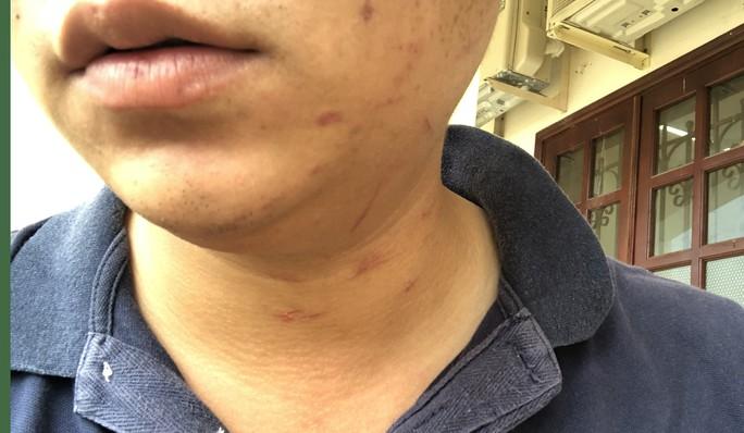 Khởi tố người đánh kiểm sát viên ở TAND huyện Bình Chánh - Ảnh 4.