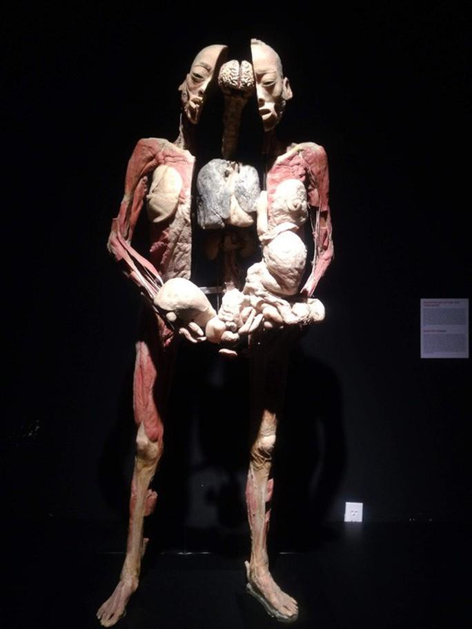 Lúng túng với cuộc triển lãm về cơ thể người gây tranh cãi ở TP HCM - Ảnh 2.