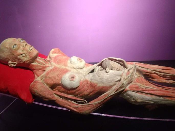 Lúng túng với cuộc triển lãm về cơ thể người gây tranh cãi ở TP HCM - Ảnh 3.