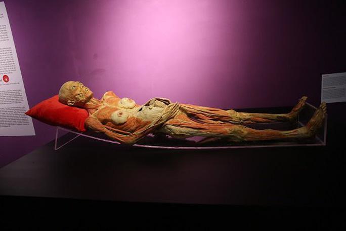 Ngừng triển lãm cơ thể người tại TP HCM vì ban tổ chức không trung thực - Ảnh 4.