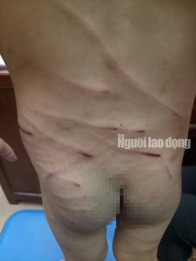 Giải cứu bé trai 3 tuổi bị cha dượng đánh dã man ở Phú Quốc - Ảnh 2.