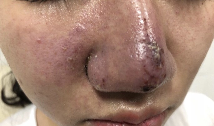 Cô gái 23 tuổi bị mưng mủ, hoại tử mũi sau tiêm filler - Ảnh 1.