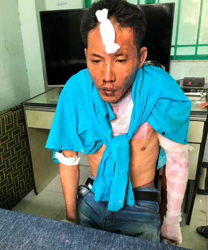 Vụ cha dượng đốt 3 người ở Đồng Nai: Hai cháu bé đã tử vong - Ảnh 1.
