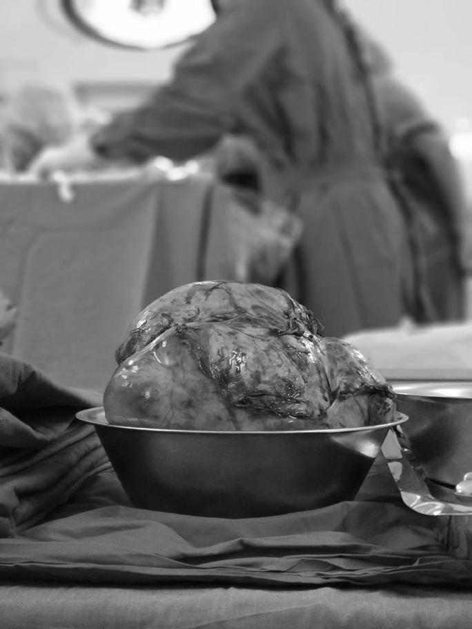 Người đàn ông mang khối u 2,5 kg ở  trung thất - Ảnh 1.