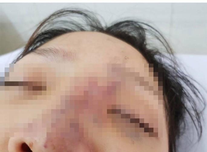 Một nữ sinh có nguy cơ mù mắt vì tiêm filler - Ảnh 1.