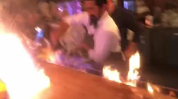 Nhà hàng biểu diễn quá tay, lửa táp thực khách bỏng nặng - Ảnh 3.