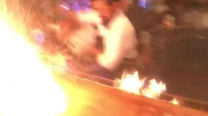 Nhà hàng biểu diễn quá tay, lửa táp thực khách bỏng nặng - Ảnh 4.