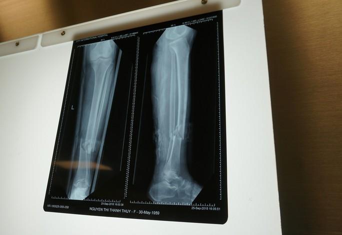 Yêu cầu kỳ lạ, người phụ nữ gãy chân bị nhiều bệnh viện từ chối - Ảnh 1.