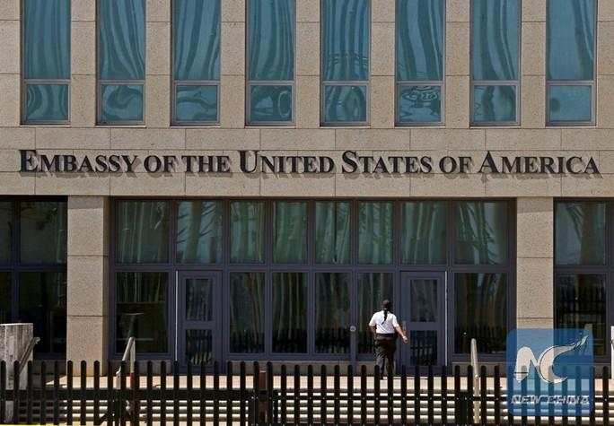 Tìm thấy vũ khí bí ẩn gây bệnh lạ cho nhân viên ngoại giao Mỹ ở Cuba? - Ảnh 1.
