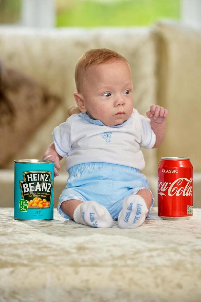 Mẹ sắp phá thai lưu, con bỗng ra đời: chỉ 340 g, vẫn sống khỏe! - Ảnh 3.