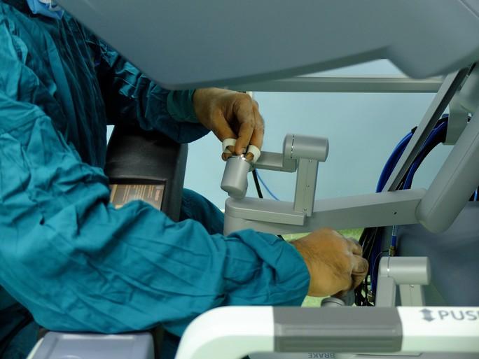 Bệnh viện Bình Dân dùng robot trị dứt bệnh đàn ông - Ảnh 2.
