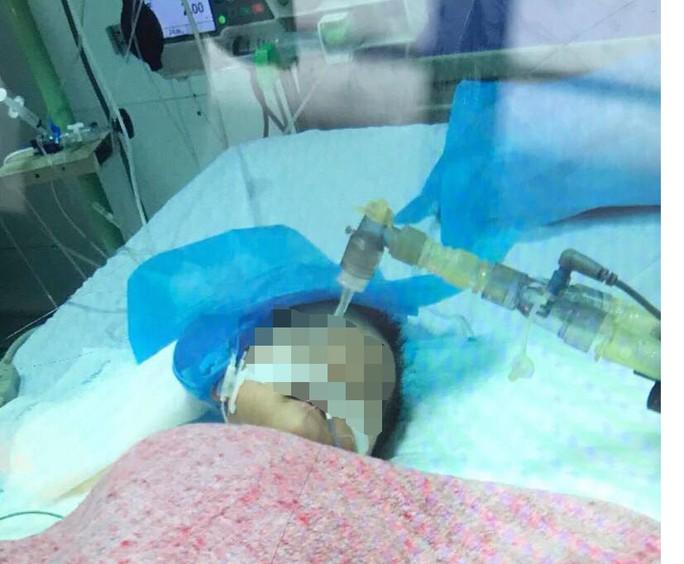 Bé gái 8 tháng tuổi nguy kịch vì điều dưỡng tiêm nhầm thuốc uống - Ảnh 1.