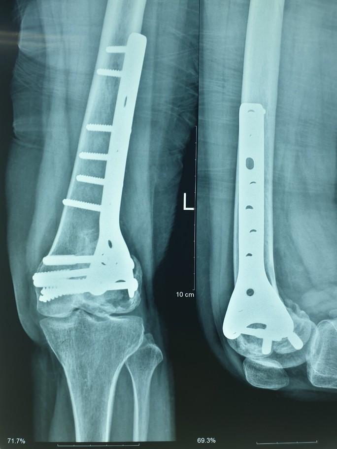 Ghép xương từ người hiến chết não cứu chân bệnh nhân bị u tế bào khổng lồ - Ảnh 2.