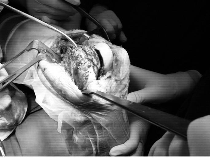 Ghép xương từ người hiến chết não cứu chân bệnh nhân bị u tế bào khổng lồ - Ảnh 3.