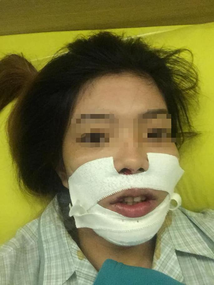 Mở băng sau cắt hàm, nữ công nhân không tin vào gương mặt mình - Ảnh 2.