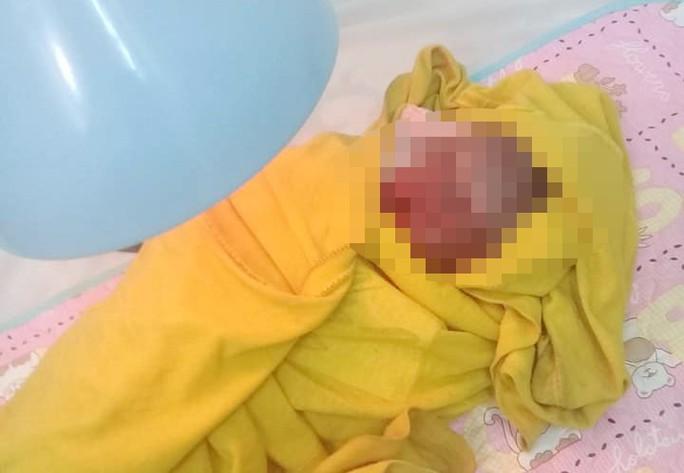 Cứu sống bé sơ sinh bị bỏ rơi trong đêm giá rét - Ảnh 3.