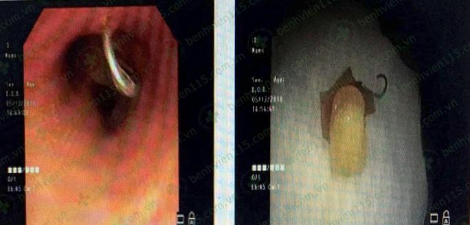 Tai nạn hy hữu từ chiếc răng giả văng khỏi hàm khi ho - Ảnh 1.