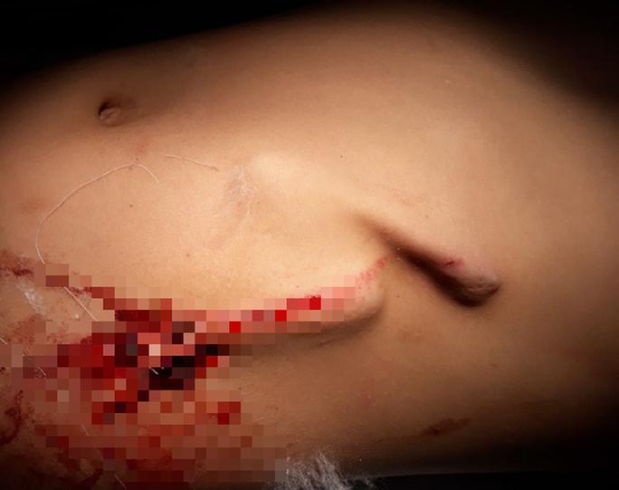 Bé trai 8 tuổi bị gốc cỏ voi đâm thủng bụng - Ảnh 1.