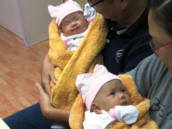 Rụng tim với 2 cô bé song sinh dính liền ngày xuất viện - Ảnh 7.