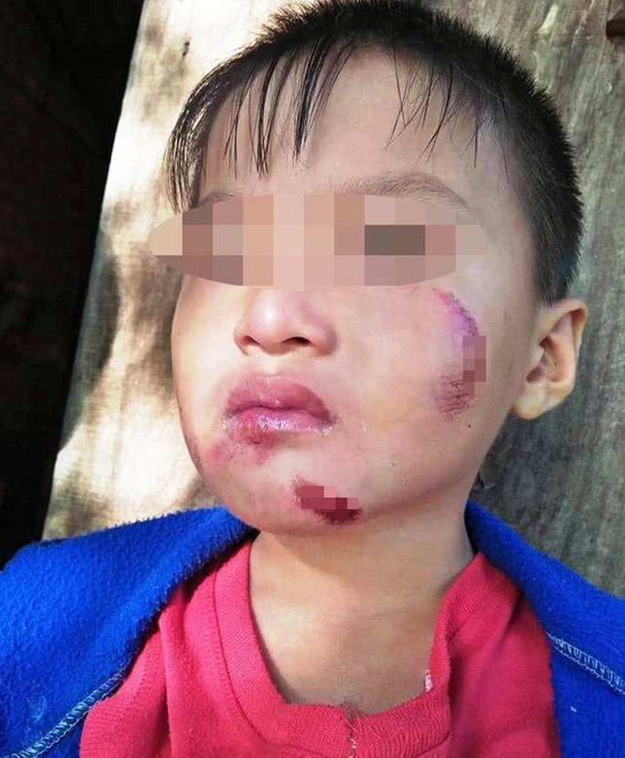 Một cháu bé 6 tuổi nghi bị chính mẹ ruột đánh dã man - Ảnh 4.