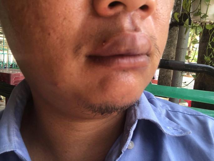 TP HCM: Dừng xe trước nhà mình,1 phóng viên bất ngờ bị hành hung - Ảnh 1.