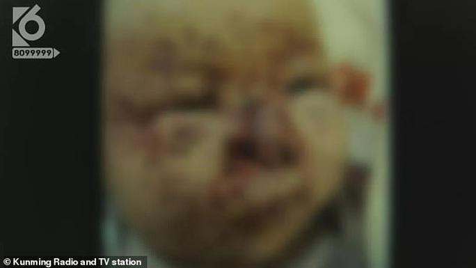 Bé 3 tháng tuổi bị chuột cắn nát mặt, đứt mũi - Ảnh 1.