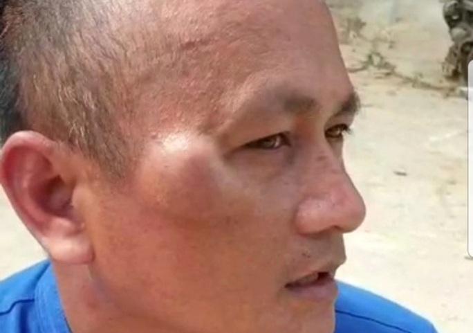 Công an cho quản lý khách sạn ở Phú Quốc nhận dạng nghi phạm đánh mình - Ảnh 2.