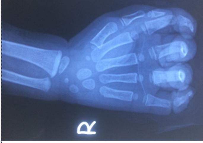 Bé 23 tháng tuổi bị đứt ngón tay do kẹt vào dây curoa máy rửa xe - Ảnh 1.
