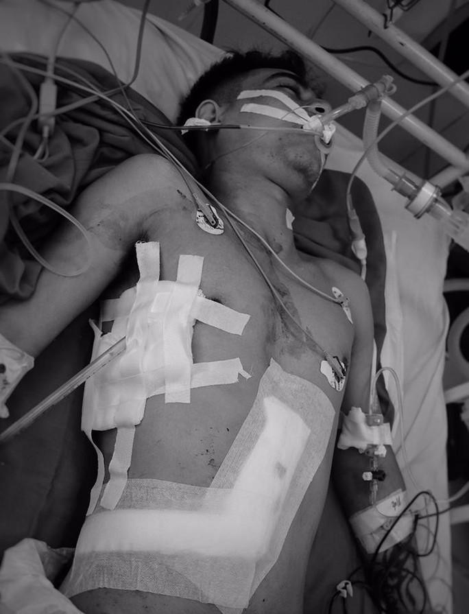 Cứu sống bệnh nhân bị đâm thủng tim, gan  - Ảnh 1.
