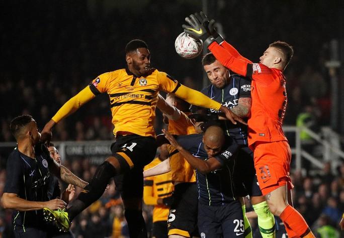 Thủ môn vỡ mũi sau cú sút khủng khiếp của Leroy Sane ở FA Cup - Ảnh 3.
