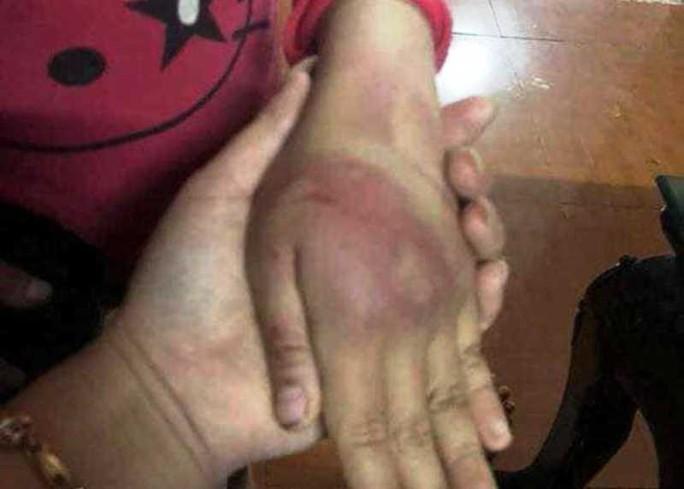 Bé gái 8 tuổi bị bố đẻ bạo hành thâm tím người - Ảnh 2.