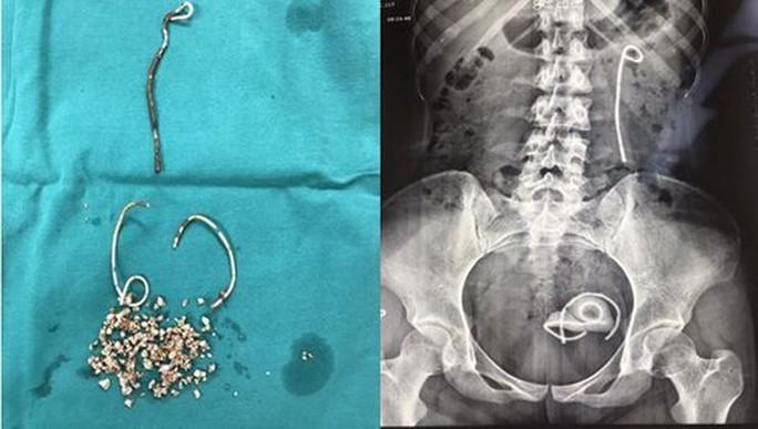 Bị đái rắt suốt 5 năm do bỏ quên stent trong niệu đạo - Ảnh 1.