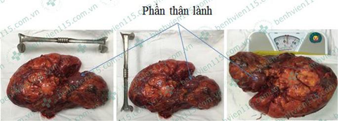 Lấy được loại u thận 3,5 kg thường gặp ở phái nữ - Ảnh 1.