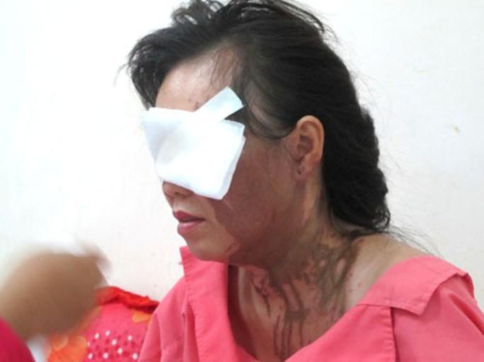 Nhức nhối nạn bạo hành phụ nữ - Ảnh 1.
