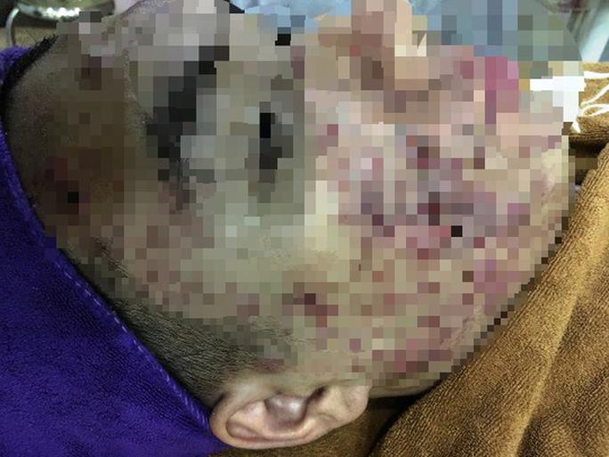 Một phụ nữ bị cày nát da mặt sau lăn kim làm đẹp - Ảnh 1.