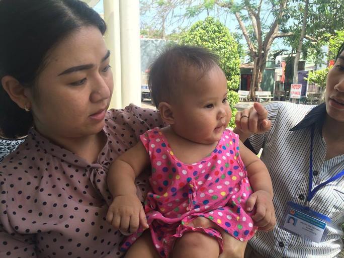 Công an phường giải cứu bé gái 8 tháng tuổi nghi bị bạo hành - Ảnh 1.